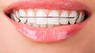 aparelho dental porcelana
