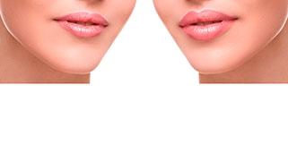 Aumentar os lábios