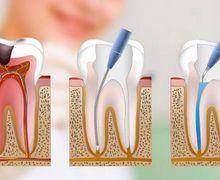 canal de dente preço