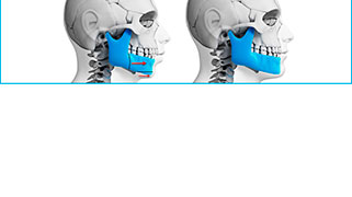 cirurgia ortognática estética