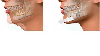cirurgia ortognática preço médio