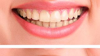 clareamento dental para fumantes