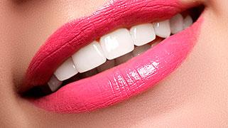 clareamento dental interno preço