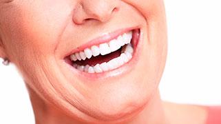 clareamento dental promoção