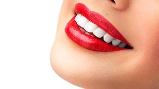 clareamento dental o que pode comer