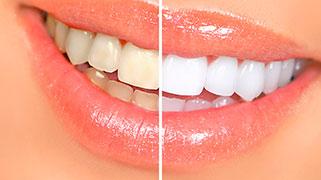 Clareamento dentário a laser