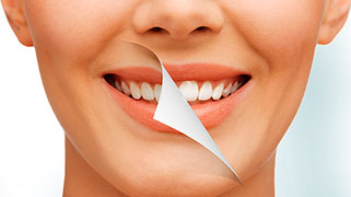Clareamento de dente a laser preço
