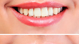 clareamento natural dos dentes