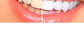 como fazer clareamento dental caseiro