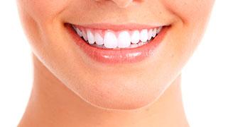 como e feito clareamento dental