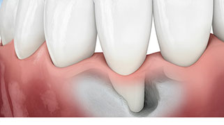 enxerto ósseo dentário preço
