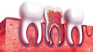 nevralgia dentária tratamento