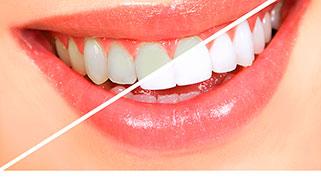 onde comprar clareamento dental caseiro