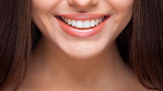qual e o melhor clareamento dental