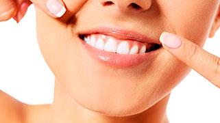 qual o preço de um clareamento dental