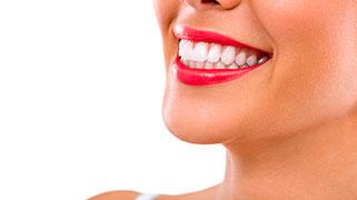 quanto custa um clareamento dentário a laser