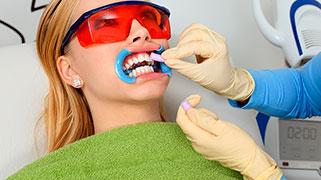 Quanto custa um clareamento a laser nos dentes