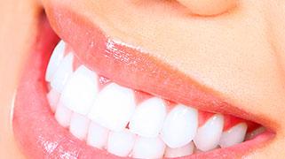 Quanto e um clareamento dental