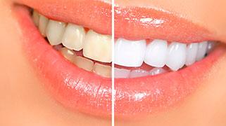 tratamento para clarear os dentes