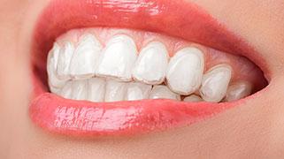 Valor de clareamento dental