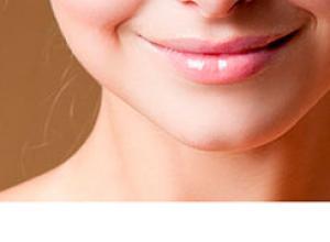 antes e depois preenchimento bigode chinês