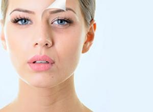bigode chinês preenchimento antes e depois
