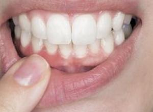 cirurgia dentária na gengiva