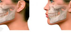 cirurgia ortognática classe 3