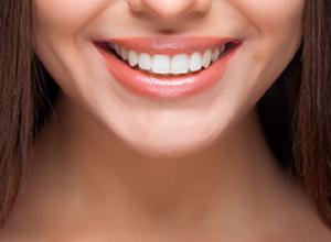 clareamento dental quanto custa