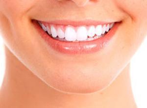 clareamento dental valor