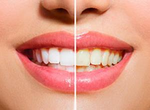 como é feito clareamento dentário