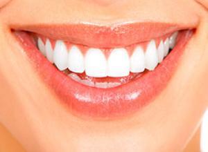 dentista clareamento