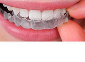 Dentista especialista em bruxismo