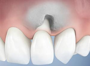 Enxerto de osso na boca