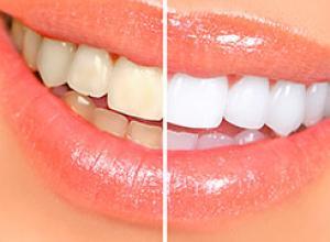 fitas para clareamento dos dentes