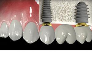 osso para enxerto odontológico