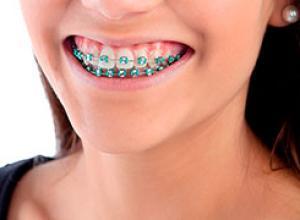 aparelho dentário móvel