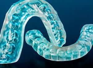 bruxismo dental tratamento