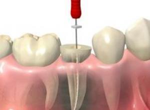 canal odontológico