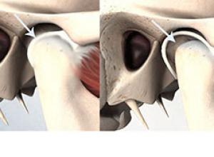cirurgia atm