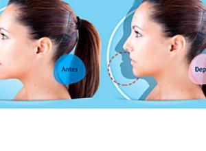 cirurgia ortognática classe 3 antes e depois