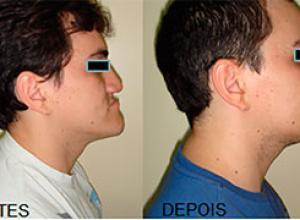 cirurgia ortognática mandíbula