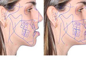 cirurgia ortognática maxilar superior