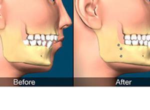 cirurgia ortognática pós operatório