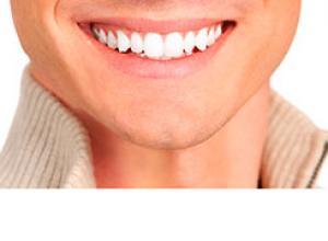 clareamento dental caseiro o que não pode comer