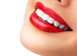 clareamento dental como fazer