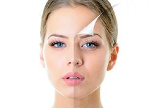 como diminuir linhas de expressão no rosto