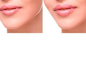como tratar bigode chinês