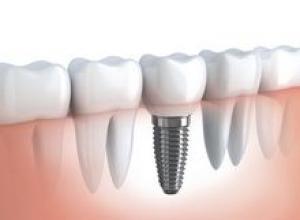 implantes dentarios preço