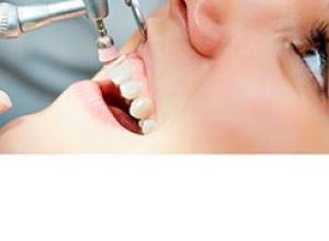 limpeza dentária preço